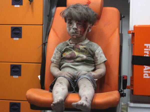 Syria: Brother of Omran Ali Daqneesh died from his injuries