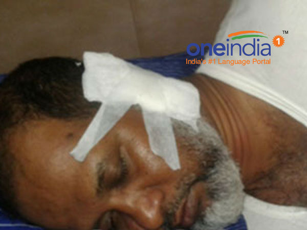 Madrassa president in ullal attacked by youth, escaped from death.