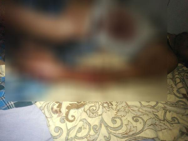 ಚಾಮರಾಜನಗರ: ಜಾಬ್ ಕಾರ್ಡಿಗಾಗಿ ಗುಂಡೇಟು ನೀಡಿದ ಖದೀಮ!
