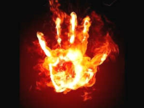 Women Burnt Alive By Husband For Not Clearing Medical Entrance Exam In Hyderabad
