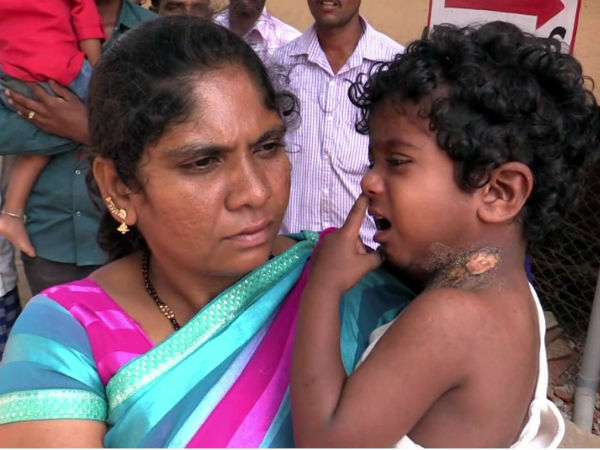 Anganwadi Helper Assaulted On Dalit Boy By Hot Ladle In Charamrajnagara District