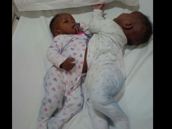 Conjoined twins from Nigeria successfully separated at Narayana Health City