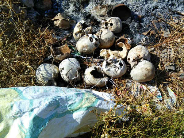 Mysuru 13 Skulls In A Bag Spotted In Vijayanagar