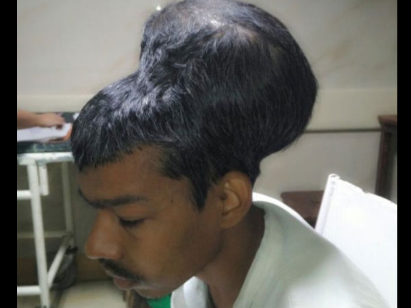 Mumbai Doctors Remove Worlds Largest Brain Tumour