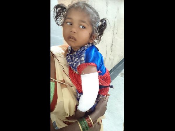 Bear Attack Claims Four Months Child Near Bhadravati