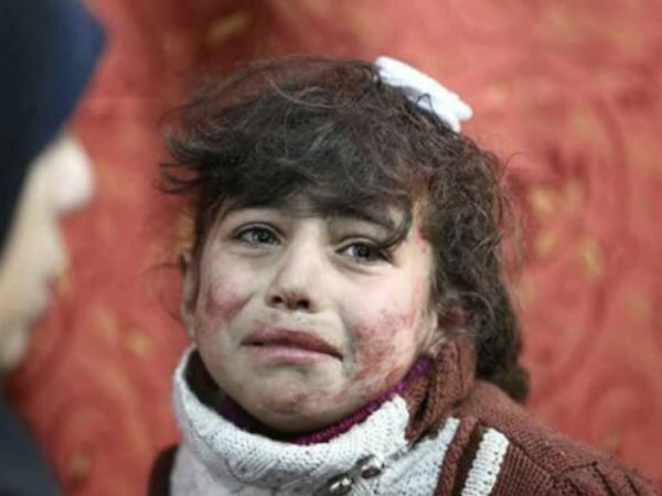Syria Attack Sympathetic Pictures