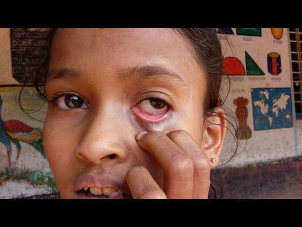 Video Ants Coming Out Of Girls Eye In Belthangady