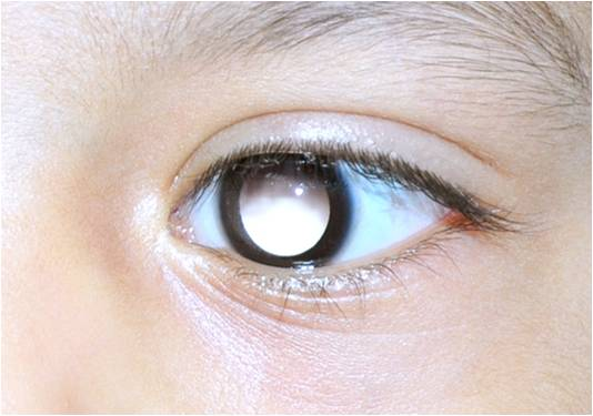 Rise in cases of Retinoblastoma below 5 year children