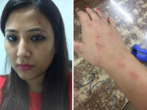 Journalist physically attacked by another woman in Uber