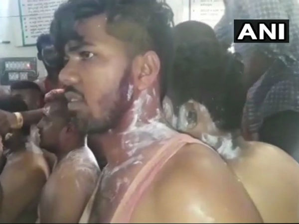 Acid Attack On Congress Party Workers In Tumkur