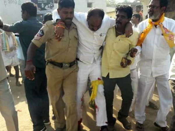 TDP candidate came in Ambulance to file nomination