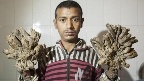 I asked doctors to cut off my hands: Tree man syndrome patient