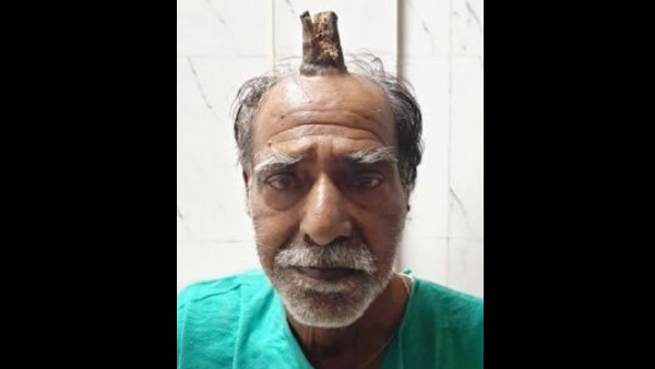 Horn Like Growth Removed From 74 Year Old Man