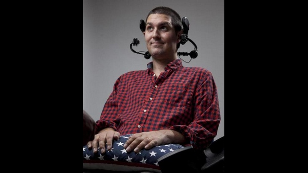 Ice Bucket Challenge Inspiration Pete Frates Died At 34