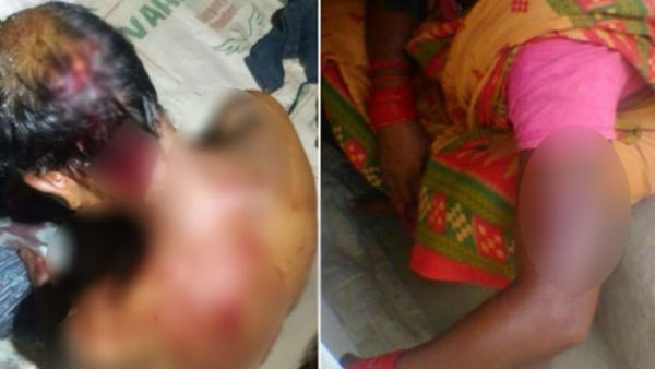 Migrant Workers Attacked By Owner In TamilNadu