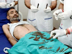 Knives Removed From Stomach Of A Punjab Policeman