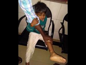 Stray Dog Bit S 3 Kids In Yalandur Chamarajanagar